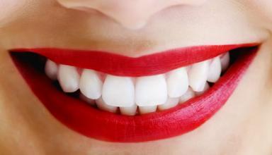 Жители и гости Нижнего Новгорода получили возможность качественно отбелить свои зубы