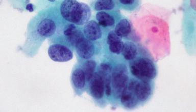 Ученые нашли способ предотвратить распространение метастазов рака