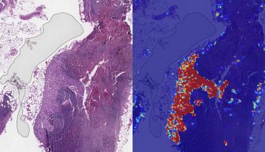 Искусственный интеллект Google диагностирует рак груди лучше, чем врачи