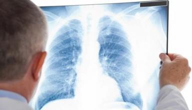 В Украине за месяц обнаружили около тысячи новых больных туберкулезом