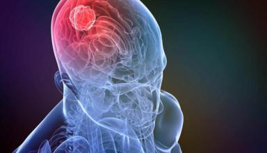 Вирус остановил развитие опухоли головного мозга