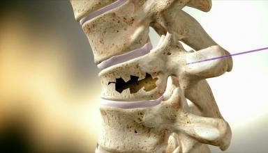 Многочисленные исследования доказали:добавки кальция не защищают уже стареющие кости