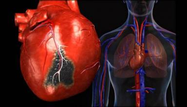 Стенокардиия сердца. Что это такое и как это лечить?
